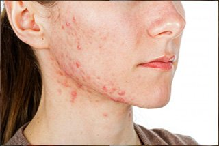 Acne Face-Pimples Treatment - Inflammation